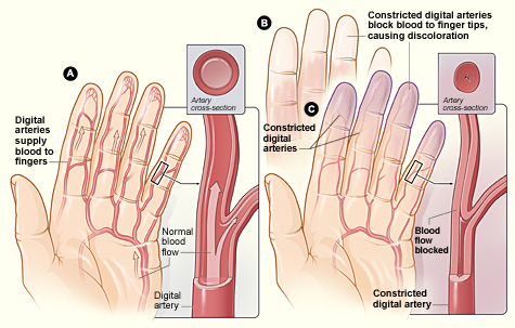 Raynaud's Diagram